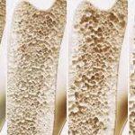 پوکی استخوان، بیماری خاموش زنان چه علائمی دارد
