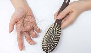 دلایل اصلی ریزش مو در زنان و مردان +راه های درمان