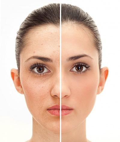 درمان منافذ پوستی با این راهکارها