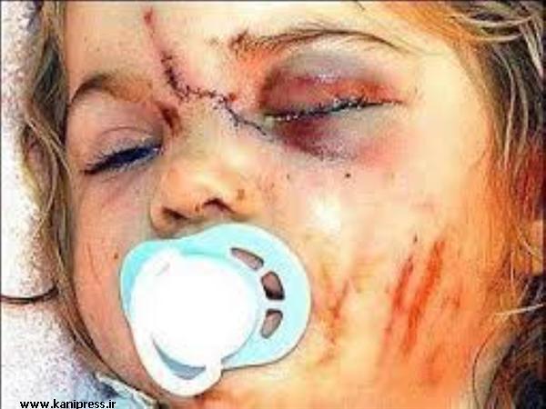 اطلاع ندادن کودک آزاری جرم است / کودک آزاری را به اورژانس بهزیستی اطلاع دهید