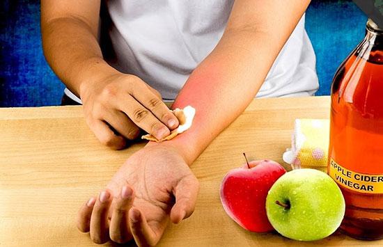 درمان خانگی سوختگی ها